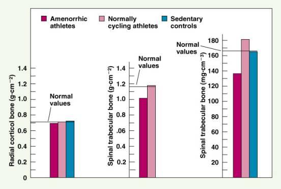 Amenorrhea In Athletes C  Skeletal Injuries